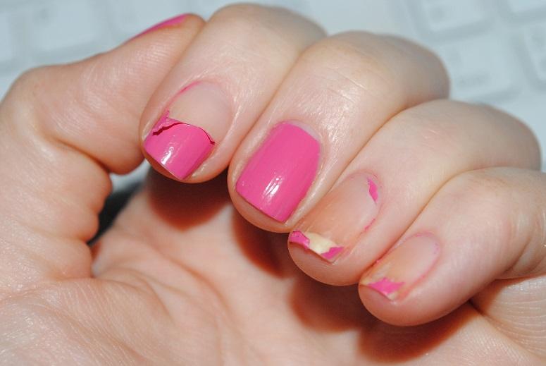 Image of Peeling nail Polish